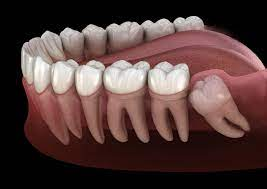 Cost of Wisdom Tooth Removal